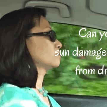 sun damaged skin from driving