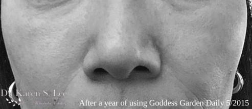 after using Goddess Garden